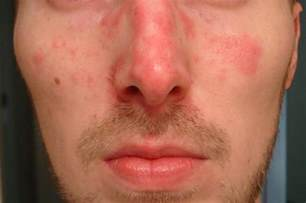 pictures of red skin rashes picture 3