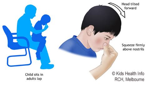 Causes of blood pressure increase and nose bleeds picture 10