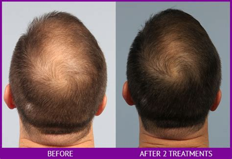 laser hair removal cost picture 15
