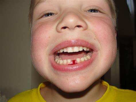children's health losing teeth picture 6