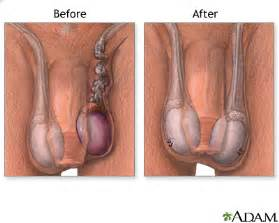 before and after pics penis traction picture 3