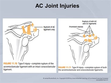 ac joint pain picture 3