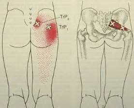 acupressure point for pain in sacroiliac joint picture 19