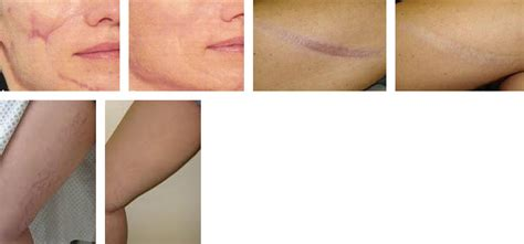 fraxel stretch marks pictures picture 6