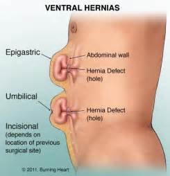 can collagen supplements cure hernias picture 11
