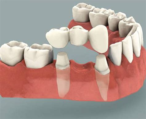 h whitening for bridges picture 7