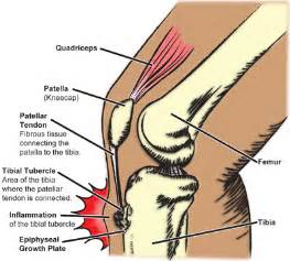 joint effusion of the knee picture 15