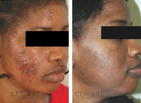 skin needling in los angeles picture 10