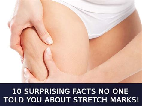 facts about stretch marks picture 1