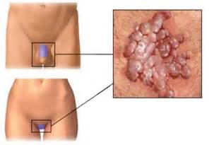 the vampire fungus in the stomach cure picture 14