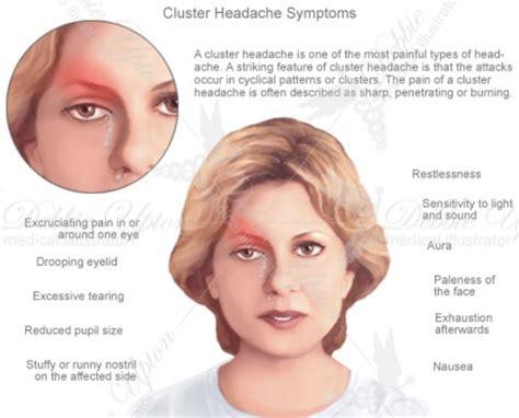 cluster headaches sleep fatigue picture 11
