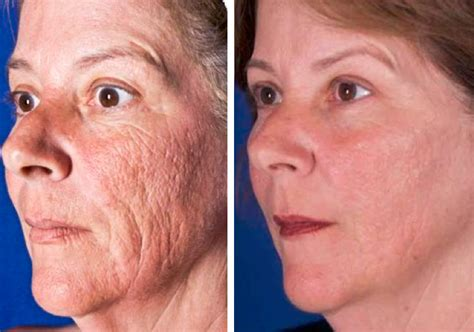 antiaging before after picture 9