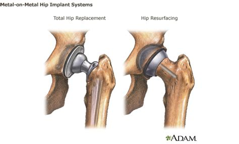 cost of knee joint replacement picture 9