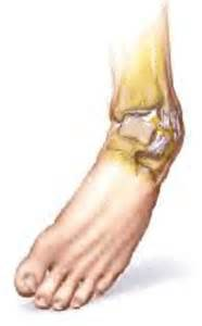 care for muscle tares and sprains picture 9