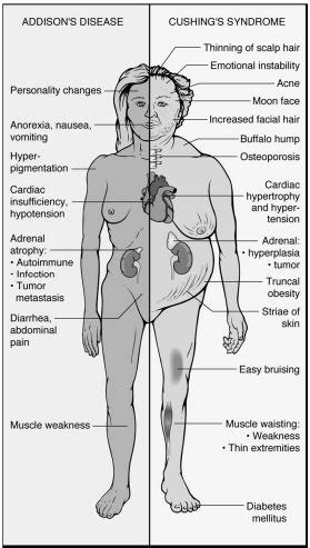 hyperparathyroidism and weight gain picture 15