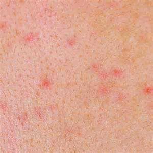 diagnose skin rash picture 19