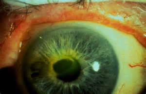 ophthalmic herpes picture 5