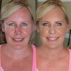 best foundation for red and brown blotchy skin picture 1
