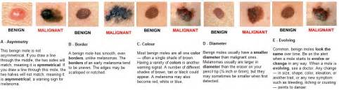 pictures of melanoma skin cancer picture 5