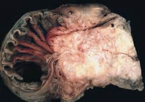 inflammatory bowel disease veterinary picture 10