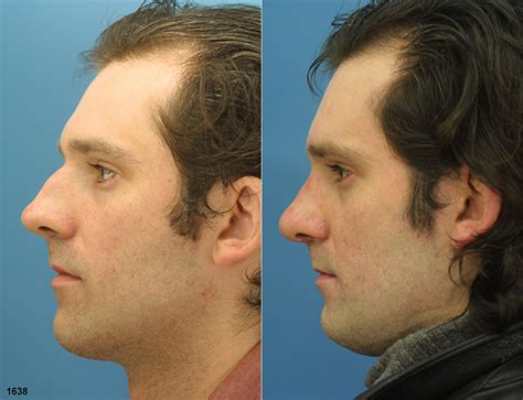 cost of male nose enhancement in the philippines picture 16