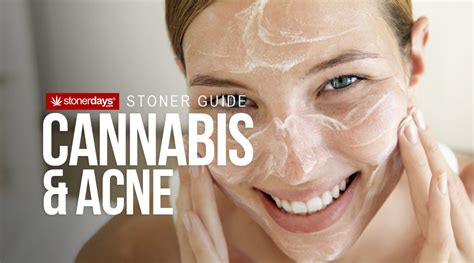 acne from marijuana picture 1
