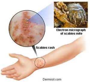 scabies skin medical picture 14