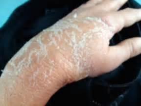 broken skin on under arm picture 3