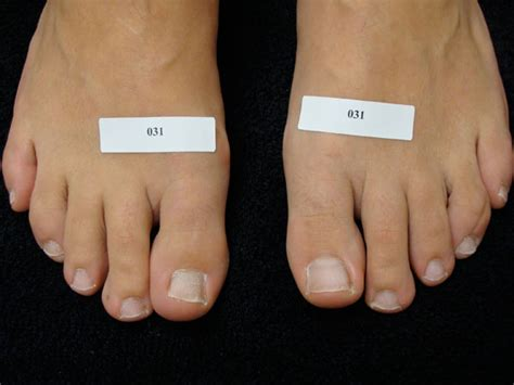 laser foot fungus treatment oregon picture 5