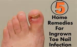 remedies for toenail fungus+ painting toenails picture 7