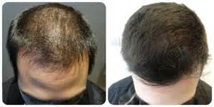 proscar hair growth picture 2