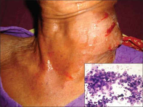 aspirate growth on thyroid picture 21