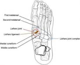 lisfranc joint picture 11