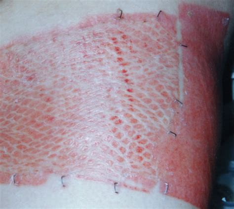 healing from a skin graft picture 1