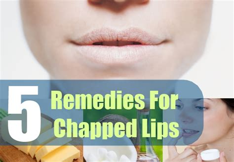 cure for dry lips picture 5