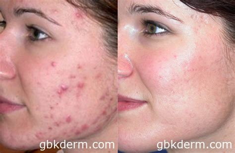 acne scarring on face what to do picture 8