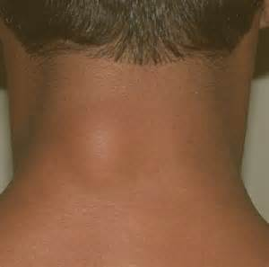 lump on back of neck due to weight picture 2