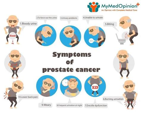hardening.of prostate may not indicate cancer picture 1
