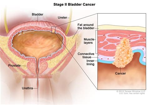 bladder cancer is what percent of all cancers picture 3