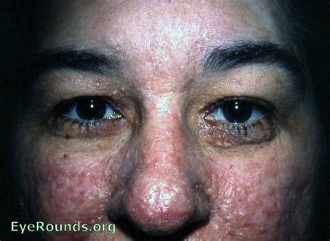 warts on face removal picture 7