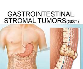 gastrointestinal stromal cancer picture 1