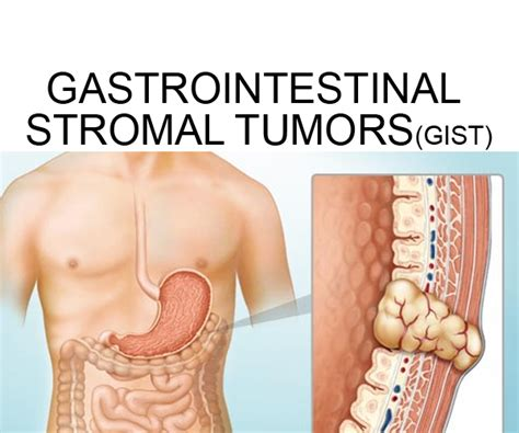 gastrointestinal stromal tumor picture 1