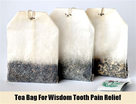 wisdom teeth pain relief picture 11