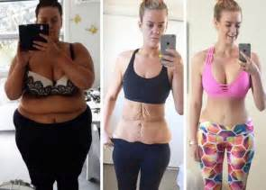abstracts of weight gain after gastric bypass picture 15