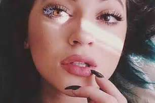swollen cap lips picture 7