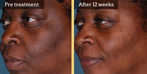 what works on african american skin for stretch picture 10
