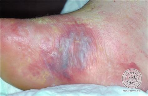herpes m picture 7