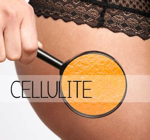 cellutherm cellulite cream nz picture 13