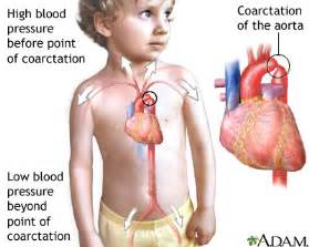 congenital heart condition in adolescent with high blood picture 7