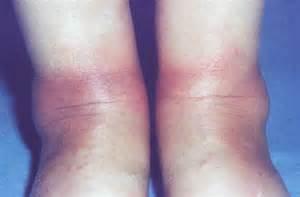 eryphemanodosus skin picture 11